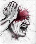 cluster_headache
